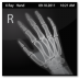 Documents-X-Ray-Hand icon